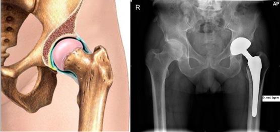 Имплантация тазобедренного сустава вмоскве контрактура плечевого сустава лечебные свойства