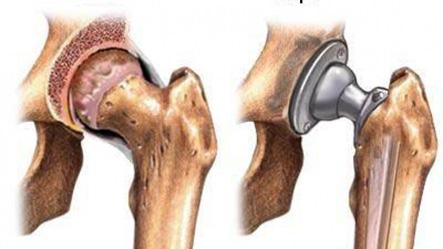 Протезирование сустава в москве ортез коленного сустава rkn 381