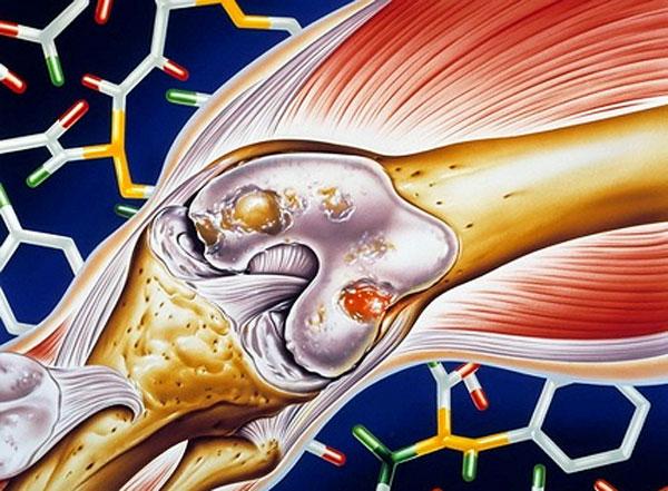 артрит суставов лечение в москве