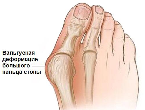 Эндопротезирование сустава большого пальца стопы эндопротезрование коленного сустава в