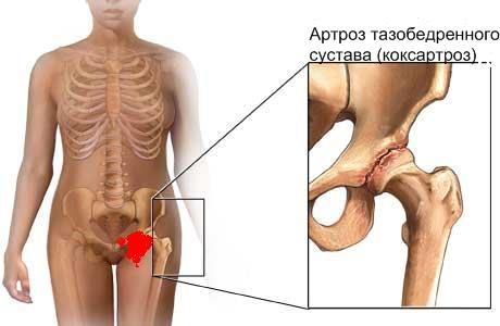 lechenie-tazobedrennovo-koksartroza-v-moskve