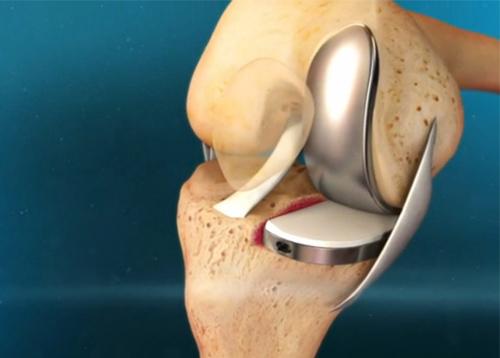 Протезирование суставов в москве клиники замена тазобедренного сустава в москве по квоте отзывы